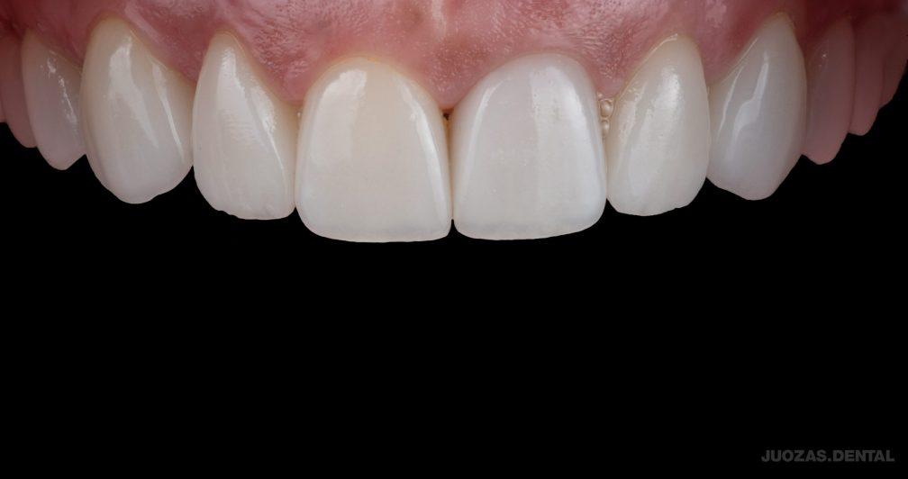 dantu-protezavimas-e-max-po-dental-crowns-after