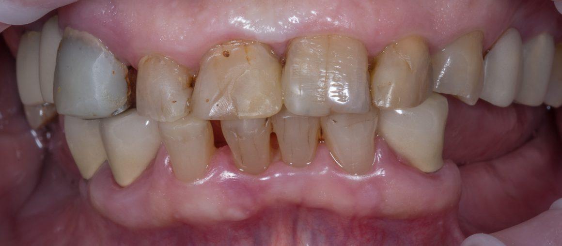 dantu-protezavimas-pries-2