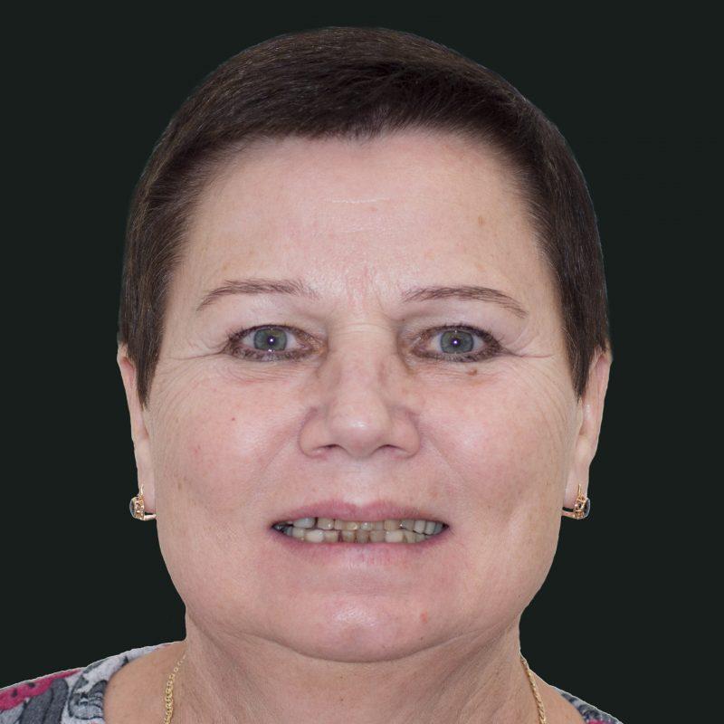 dantu-protezavimas-pries