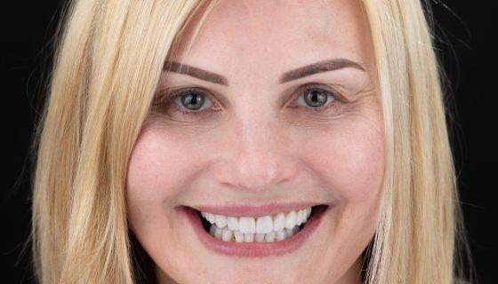 estetinis-dantu-protezavimas-e-max-dental-crowns-1