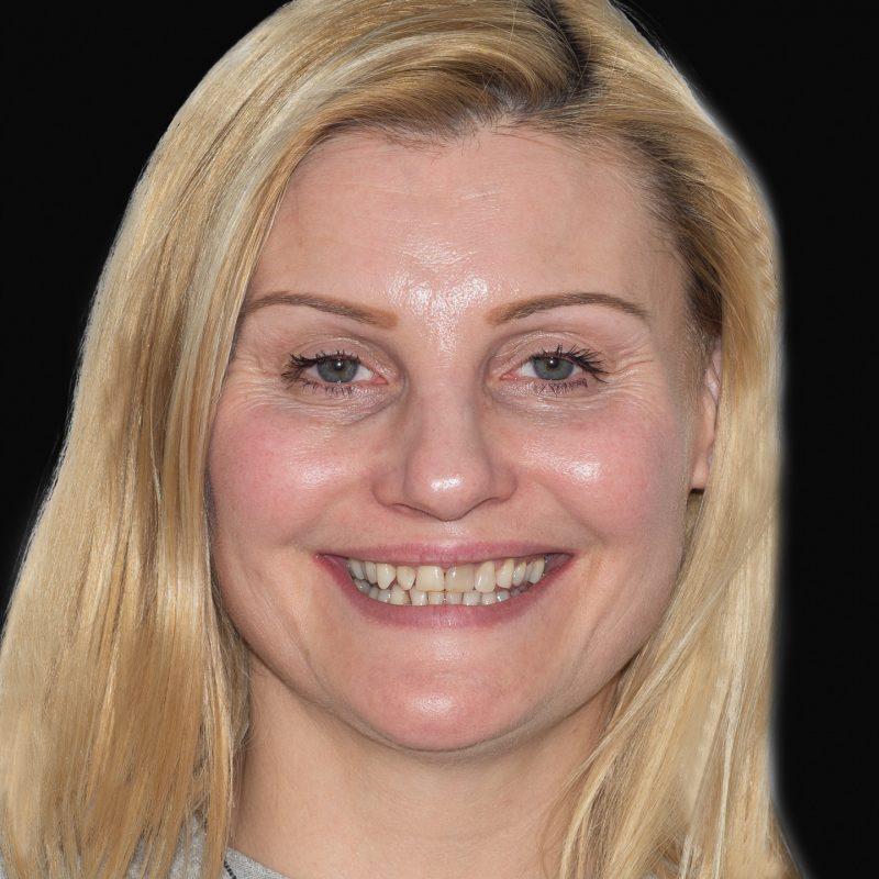 estetinis-dantu-protezavimas-e-max-pries-ir-po-dental-crowns-before-and-after