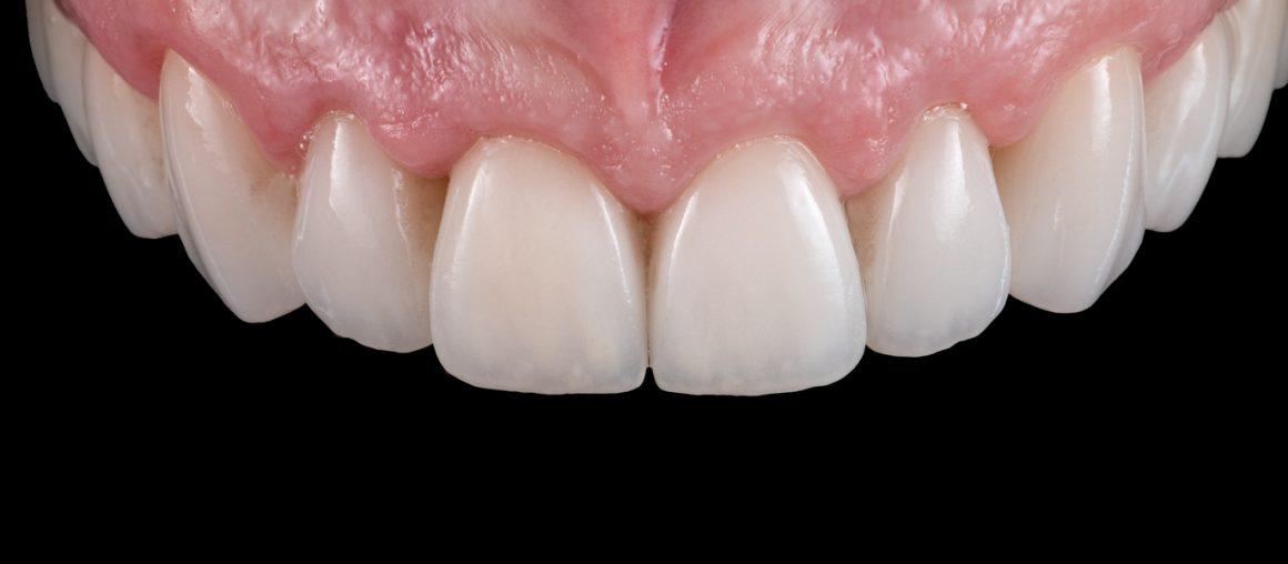 estetinis-dantu-protezavimas-lamintates-pries-ir-po-dental-veneers-before-and-after