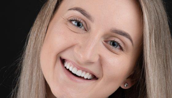 estetinis-dantu-protezavimas-dantu-lamintates-pries-ir-po-dental-veneers-before-and-after-1