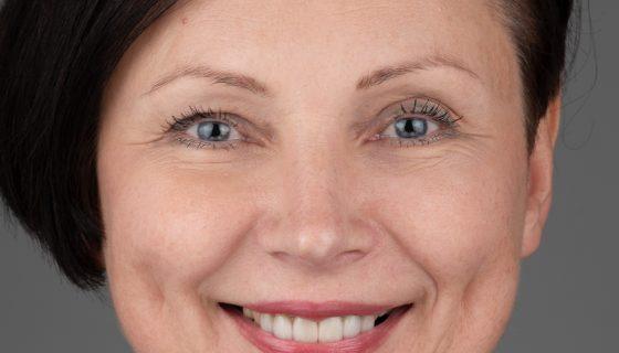 estetinis-dantu-protezavimas-e-max-dental-crowns-3